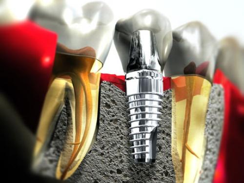 Protetyka bazująca na implantach
