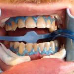 Przed wybielaniem zębów