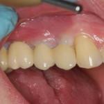 Po wstawieniu implantów