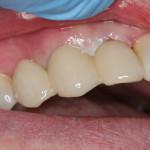 Mostek po implantacji