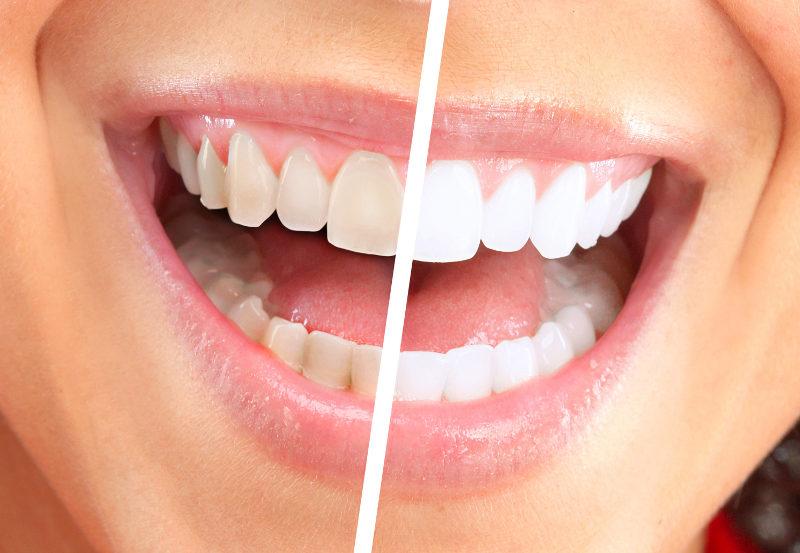 Wybielanie i prosta stomatologia estetyczna