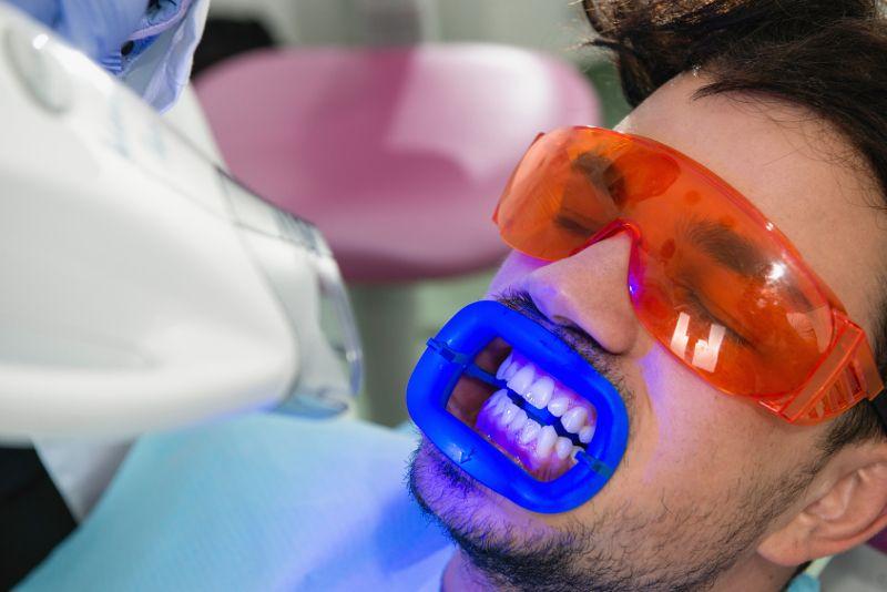 Wybielanie zębów – skuteczne sposoby na białe zęby
