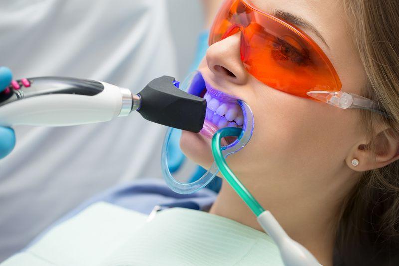 Wybielanie zębów lampą — działanie oraz zalety