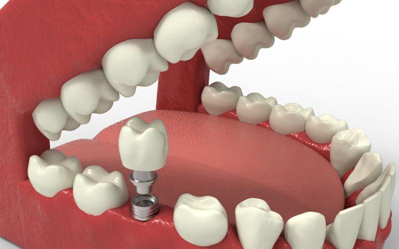 Czym są implanty zębowe jednoczęściowe?
