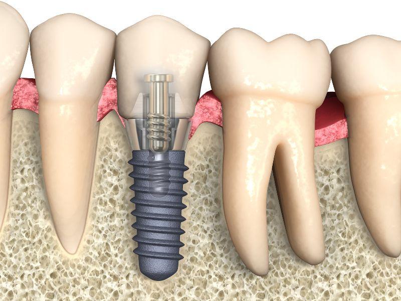 Czym są implanty zębowe dwuczęściowe?