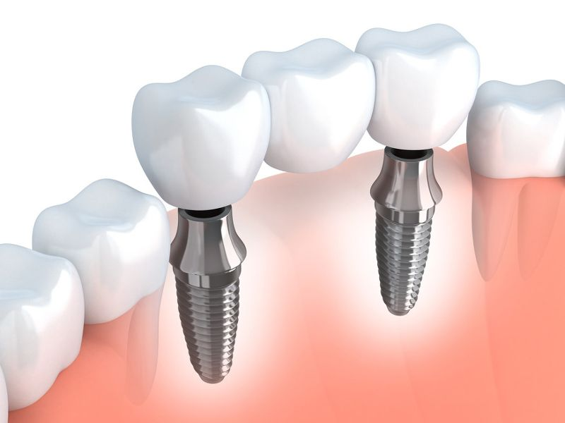 Implanty stomatologiczne tytanowe a cyrkonowe – różnica w budowie i zastosowaniu